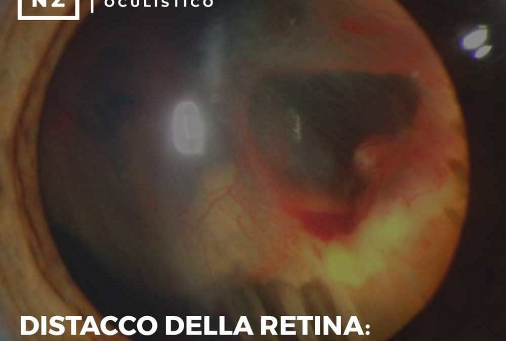Distacco della retina: come riconoscere i sintomi